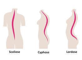 cyphose.jpg